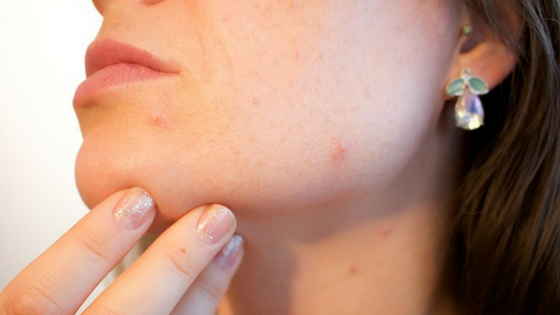 Os 5 graus da acne! Entenda que para cada grau existe um problema a mais!